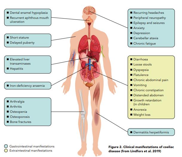 Figure 2. Clinical manifestations of coeliac disease (from Lindfors et al. 2019)